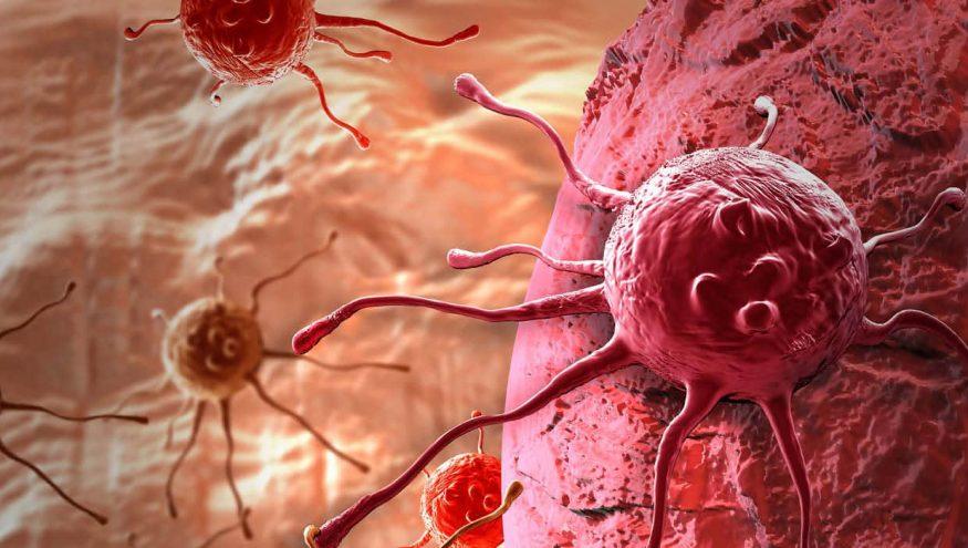 Rahim Ağzı (Serviks) Kanseri