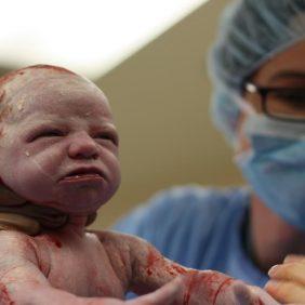 Sezaryen Doğum Zor Bir Operasyon mu?
