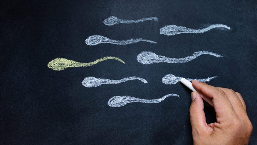 Spermiogram (Sperm Tahlili, Sperm Testi, Meni Testi)